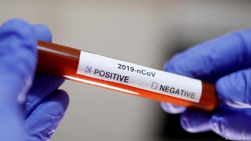 وزارة الصحة: إمكانية انتقال الفيروس عن طريق الدم تظل احتمالا جد ضعيف
