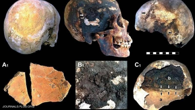 العثور على دماغ عمره ألفي عام بموقع كارثة طبيعية مدمرة