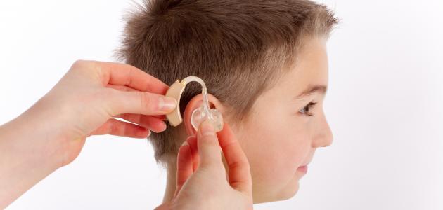 توزيع سماعات طبية على ضعاف السمع بالحوز