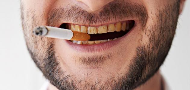 الحمضيات وقضم الأظافر والتدخين.. 7 عادات يومية تدمر أسنانك