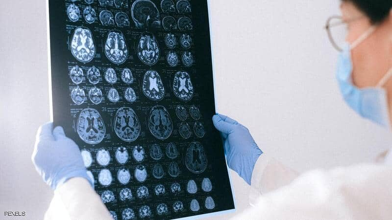 أطباء كندا في حيرة شديدة.. مرض دماغي يسبب الهلوسة والوفاة